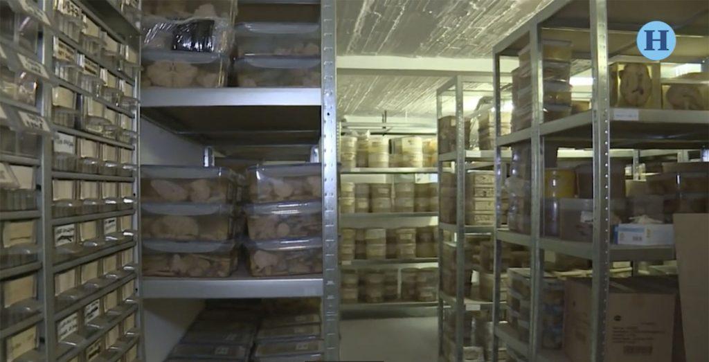 Hospital psiquiátrico almacena 3 mil cerebros para investigación médica y científica