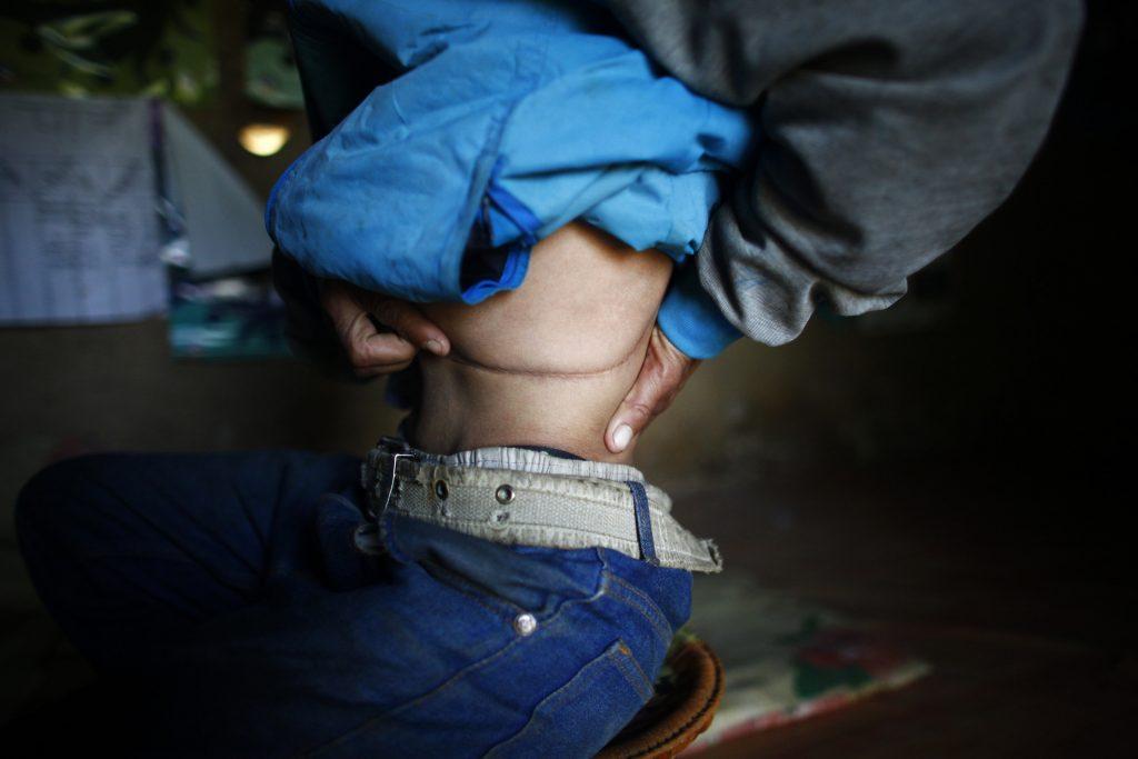 Tráfico de órganos a nivel mundial, desde Nepal a Costa Rica. @AP