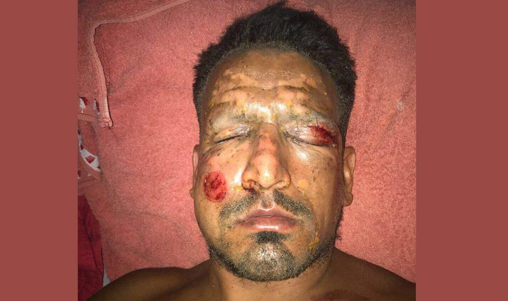 El delantero del Peñarol de Uruguay, el argentino Lucas Viatri sufrió quemaduras graves en el rostro al manipular pirotecnia en Nochebuena