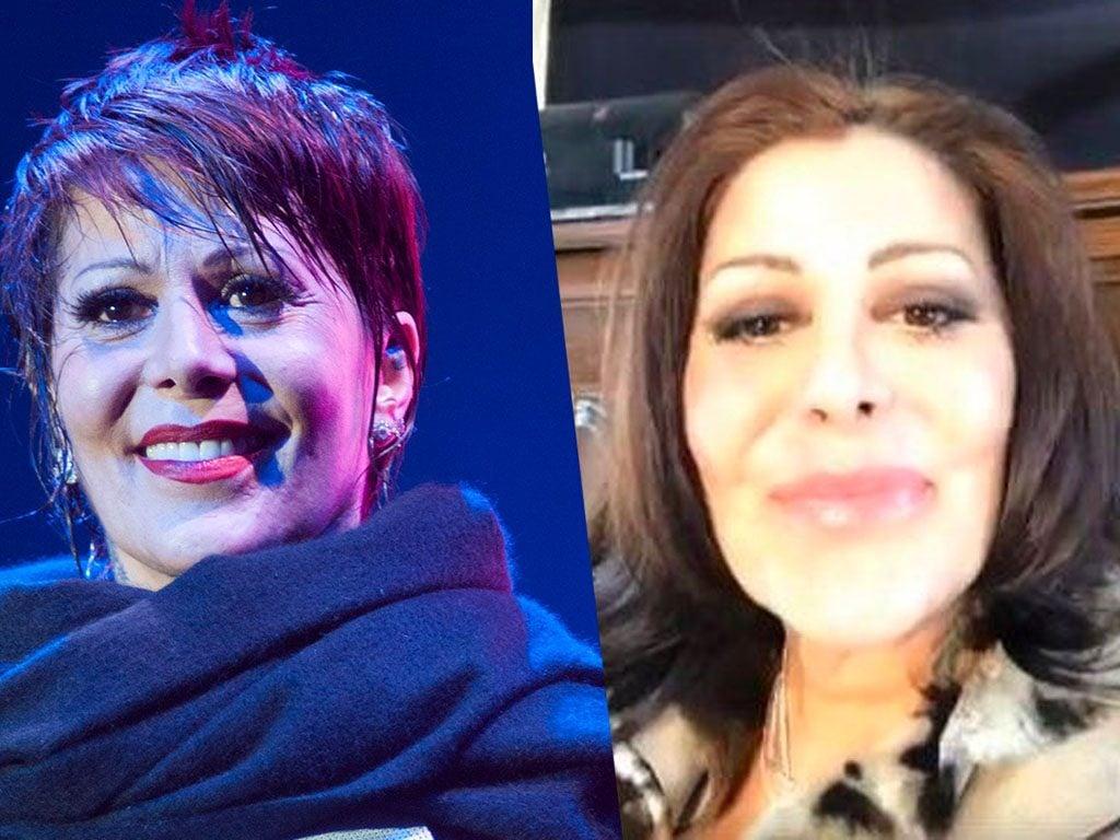 Alejandra Guzmán, ¿estrena rostro durante Facebook live?