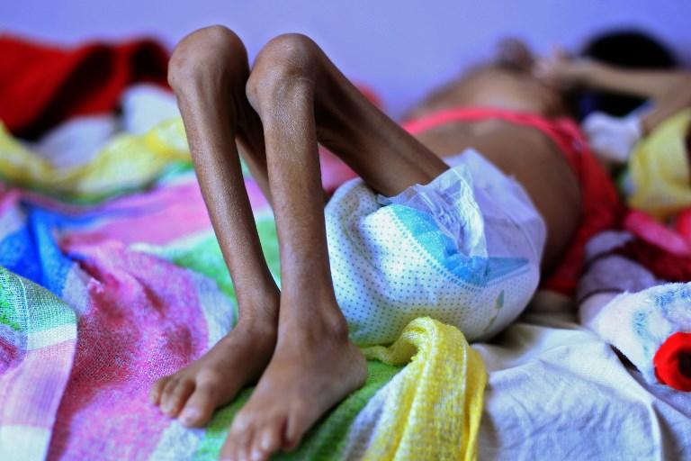 En el planeta hay 820 millones de personas que padecen de hambre. Foto: AFP