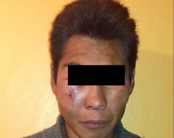 Policía de Metepec rescata a presunto delincuente de un linchamiento