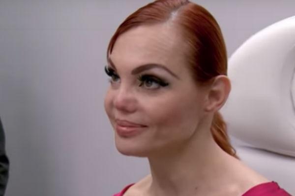 La ex modelo ha tratado varias veces de reconstruir su nariz. Foto: Youtube