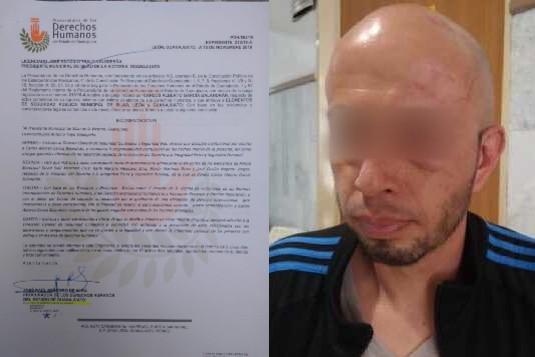 El abuso policiaco se registró injustificadamente durante un operativo intermunicipal. Foto: Especial