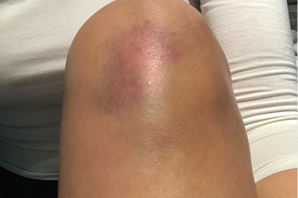 ¿Qué es un hematoma en la pierna?