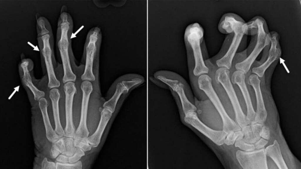 artritis-en-jovenes