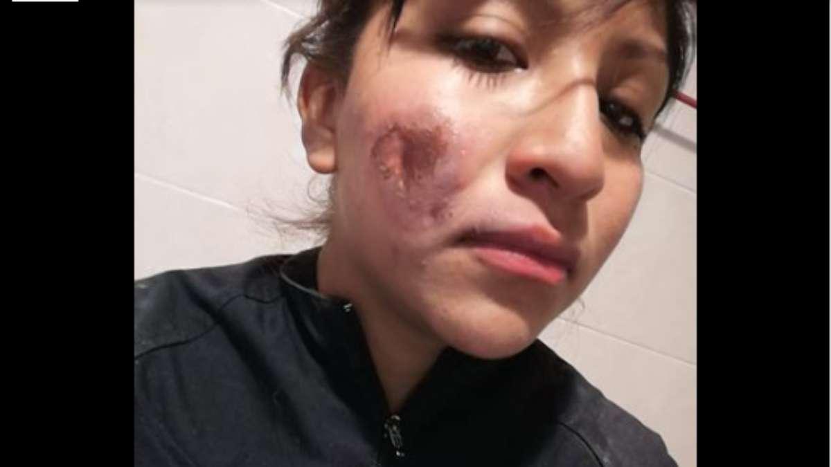 Lucero tiene una quemadura de segundo grado en el pomulo izquierdo FOTO: FACEBOOK LUCERO
