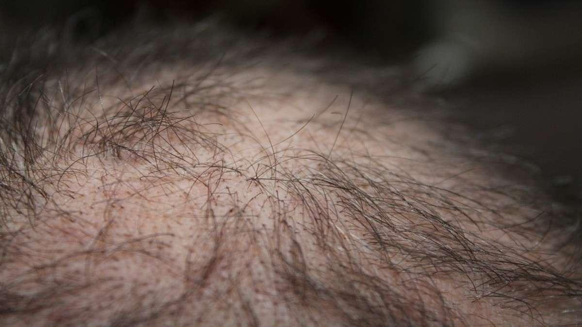 covid coronavirus tratatmiento efecto secudario perdida de cabello depresion sintomas