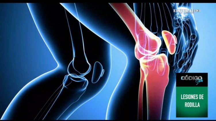 ¿Cuales son los padecimientos de rodilla más comunes?