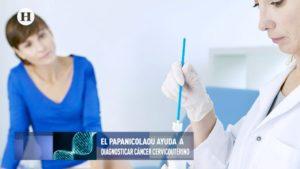Realizarse el papanicolaou es vital para la detección del cáncer cervicouterino