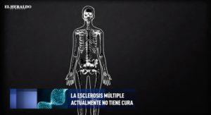 El cerebro y la esclerosis múltiple