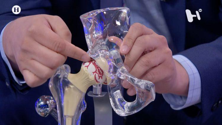 Cirugía de cadera Código Salud Mariano Rivapalacio