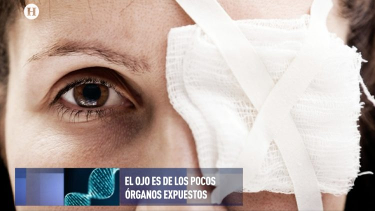 Código Salud El Heraldo TV lesiones en ojos