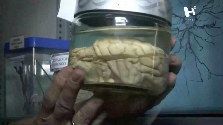 6-cerebro-mente-neuronas-pensamiento-generacion-h