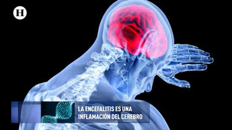 Encefalitis ok