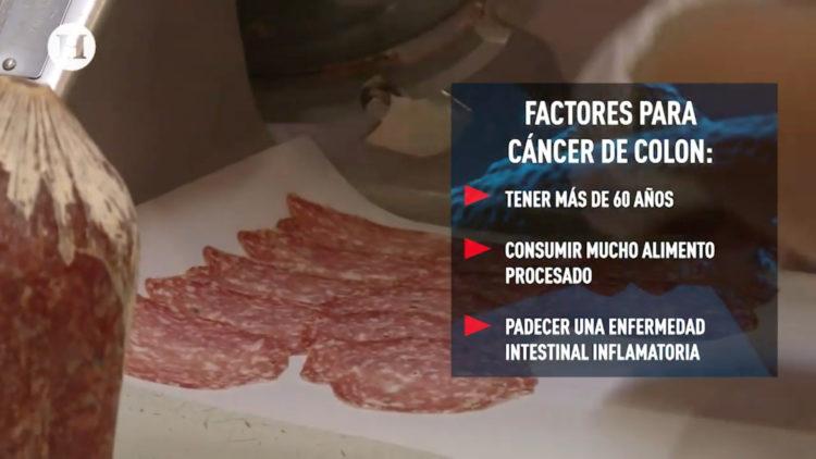 cancer-colon-mas-mortales-enterate-como-prevenirlo-sintomas-sangrado-estreñimiento-prevencion-alimentos-procesados-sedentarismo-alcoholismo-tabaquismo