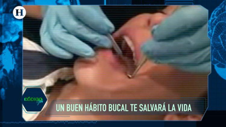 Caries, Salud dental, Boca, Dientes, complicaciones, Mariano Riva Palacio, El Heraldo TV,