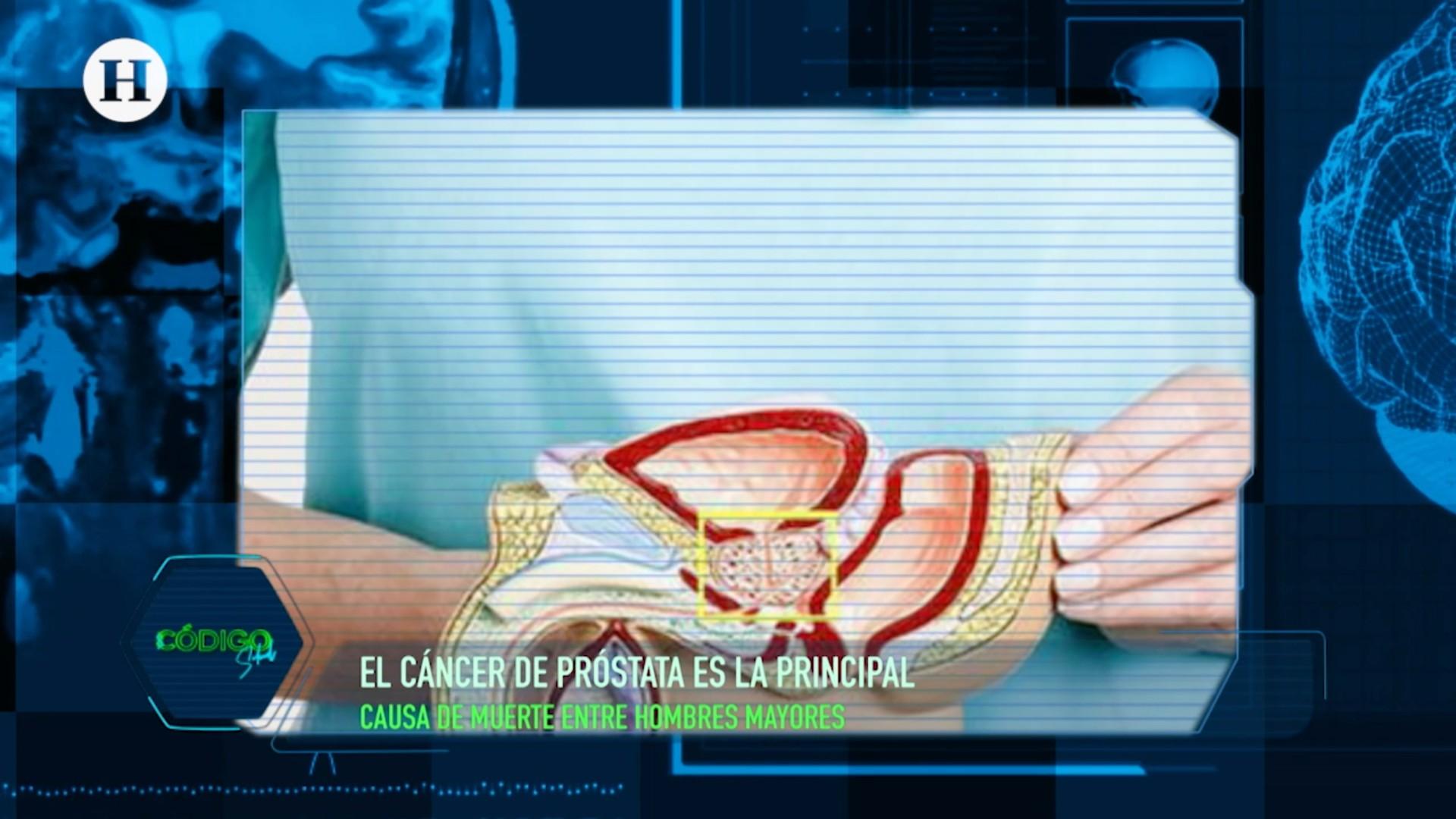 qué mutaciones causan cáncer de próstata