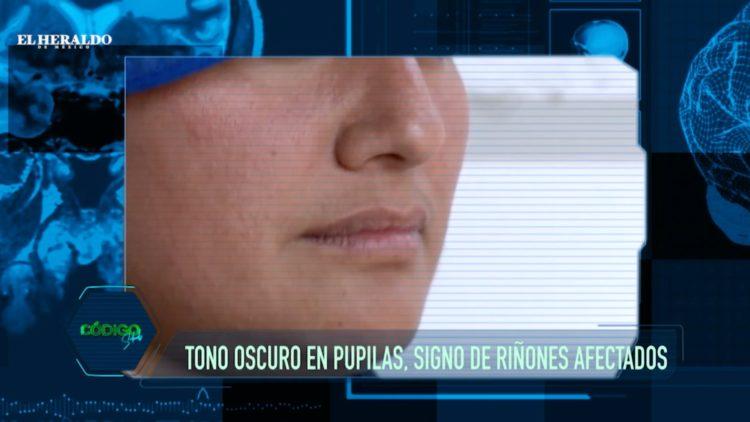 Rostro, Imperfecciones, Salud, órganos, Cuidado, Jaime Villalobos, Mariano Riva Palacio, El Heraldo TV,