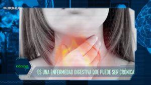 ¡Cuidate del reflujo! te podría ocasionar una enfermedad crónica