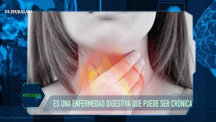 reflujo-ardor-acidez-gastritis-