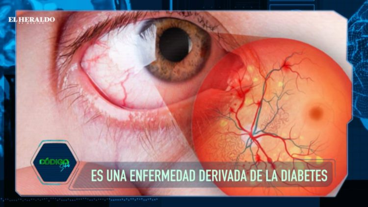 Retinopatia diabética-Diabetes-Ceguera-Visión-Vista